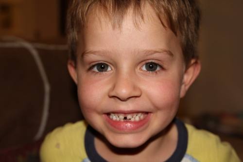 First tooth to fall out.