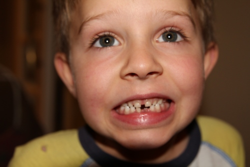 The other bottom tooth is ready.......
